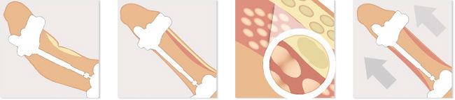 redresser le pénis courbé